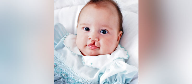What is the Cleft Lip and Palate Surgery Timeline?